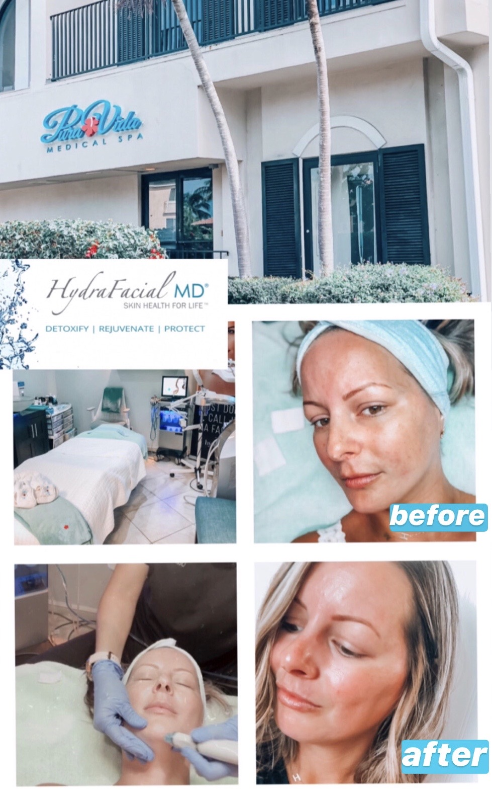 Naples, FL Medical Spa Review - Hydrafacial